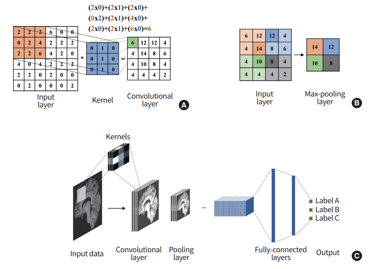 Prospects of deep learning for medical imaging