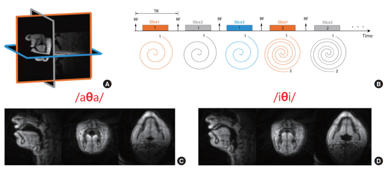 Fast upper airway magnetic resonance imaging for assessment